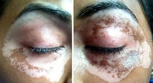 Repigmentación vitiligo